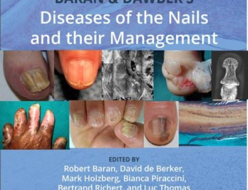 Nail Photography in the new edition of Baran & Dawber's nails book